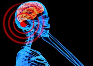 Do mobile phones cause brain tumours?